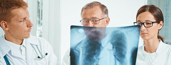 Lungenentzündung: Ärzte betrachten Röntgenaufnahmen