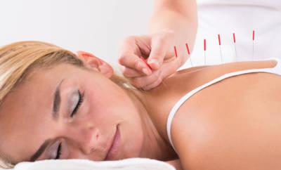 Akupunktur - Rücken