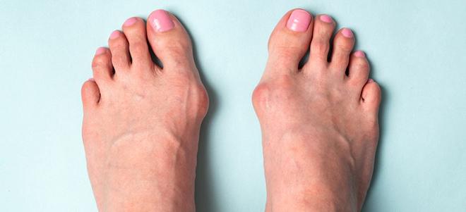 Ausschnitt Füße mit Hallux valgus