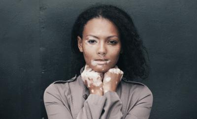 Dunkelhaarige Frau mit Vitiligo (Weißfleckenkrankheit) im Gesicht und an den Händen.