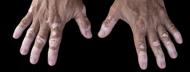 Weiße Flecken an den Händen weisen auf eine Vitiligo hin.