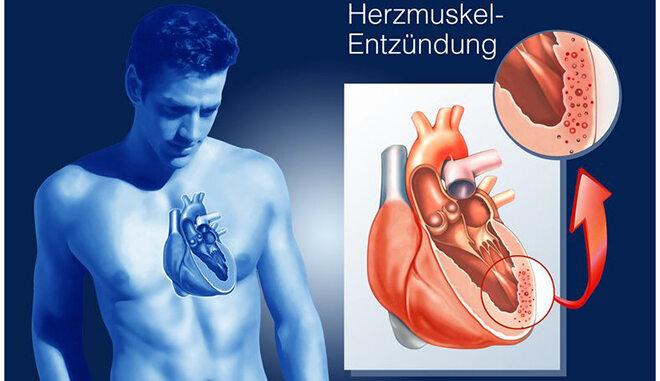 Herzmuskelentzündung