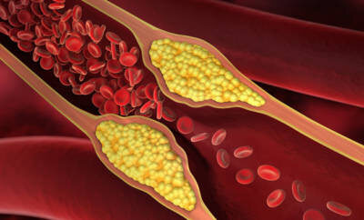 Ein Blutgerinnsel hat sich in einer Arterie gebildet. Dies kann zu einem Aneurysma führen.