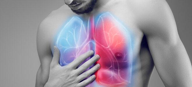 Werden viele Legionellen über Wasserdampf eingeatmet, können sie eine Lungenentzündung auslösen.