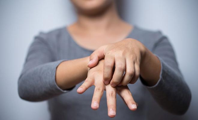 Ekzem an der Hand