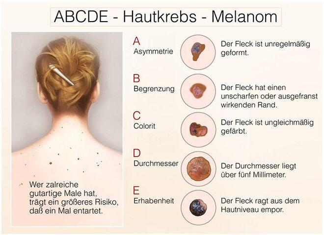 Hautkrebs Kriterien