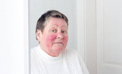"""Lupus erythematodes wird wegen der Schmetterlingsförmigen Gesichtsrötungen auch """"Schmetterlingskrankheit"""" genannt."""