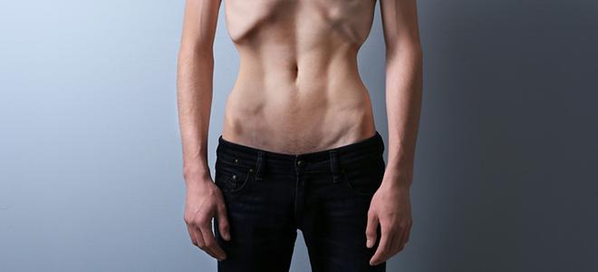 Der Anteil an männlichen Magersüchtigen steigt.