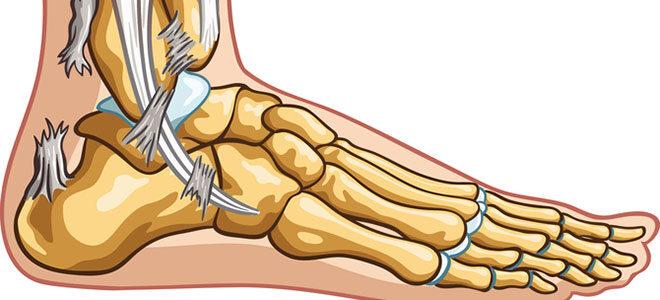 Links im Bild erkennen Sie die gerissene Achillessehne.