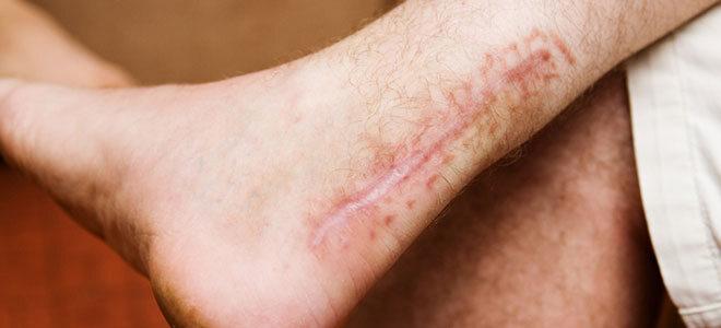 Die Narbe nach einer offenen Achillessehnen-Operation.