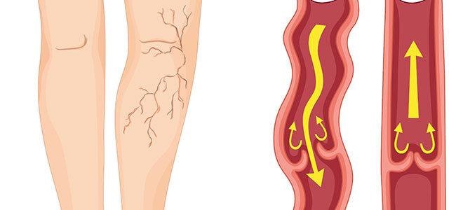 Gesunde Vene: Das Blut kann gerade durchfließen, es kommt zu keiner Stauung. Krampfader: Das Blut wird nicht richtig geleitet und es kann sich anstauen.