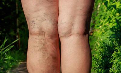 Krampfadern an den Beinen, die Beinkrämpfe verursachen können