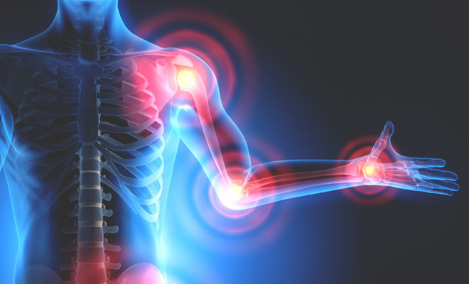 Rheuma und Arthrose kann an vielen Gelenken auftreten