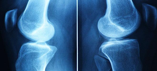 Ein Röntgenbild gibt Aufschluss über Gelenkserkrankungen wie Arthrose.