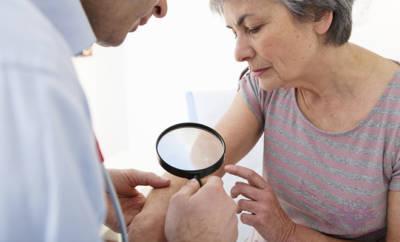 Seniorin zeigt Arzt einen Leberfleck.