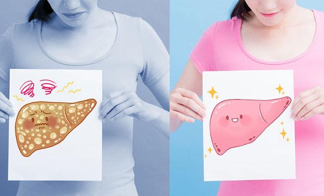 Eine Frau hält zwei Grafiken in der Hand, eine mit einer gesunden Leber, eine mit einer Fettleber