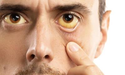 Ein Mann mit gelben Augen, einem Anzeichen von Morbus Meulengracht