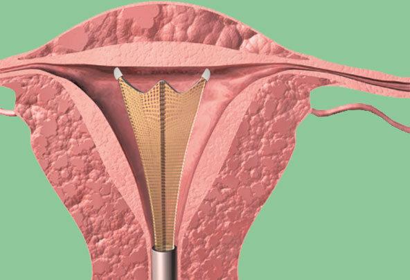 Eine grafische Darstellung der Goldnetzmethode, einer sanften Alternative zur Gebärmutterentfernung bei starken Regelblutungen.