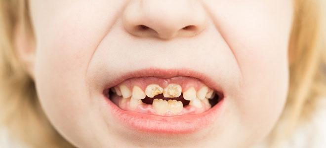 Ein Schulkind mit Kreidezähnen: Die Zähne haben eine gestörte Mineralisation, haben dadurch weiße und braune Flecken und Furchen.