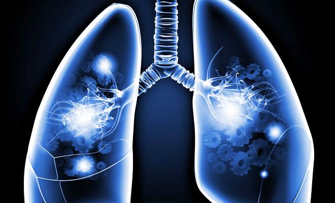 Bei der Spirometrie handelt es sich um den am häufigsten verordneten Lungenfunktionstest.