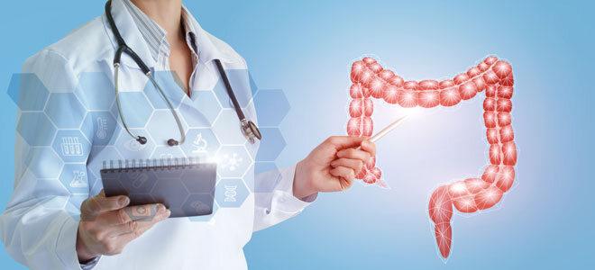 Eine Ärztin zeigt auf eine Darmgrafik
