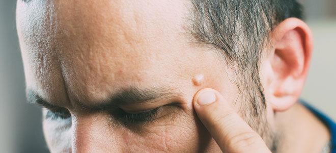 Ein Mann zeigt auf ein kleines Lipom an seiner Schläfe