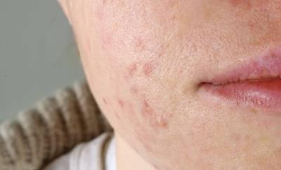 Eine junge Frau mit Akne