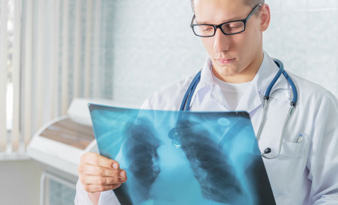 Ein Arzt betrachtet das Röntgenbild einer Lunge
