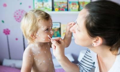 Eine Mutter behandelt ihr Kind, das an Windpocken erkrankt ist.