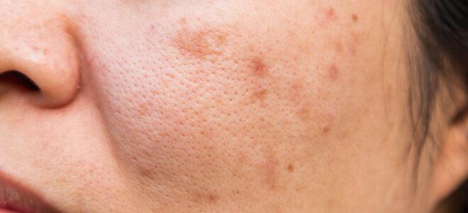 Spätakne verursacht eitrige Pickel und unschöne Narben