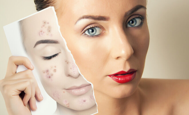 Hautprobleme im Erwachsenenalter