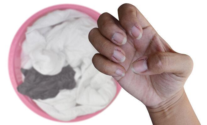 Waschmittelallergie - Hautirritationen an den Händen