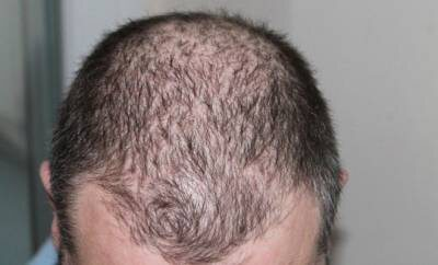 Männerkopf mit dünnem Haar