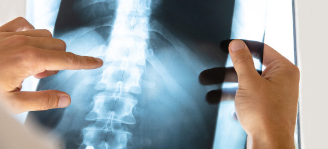 Röntgenbild der unteren Wirbelsäule