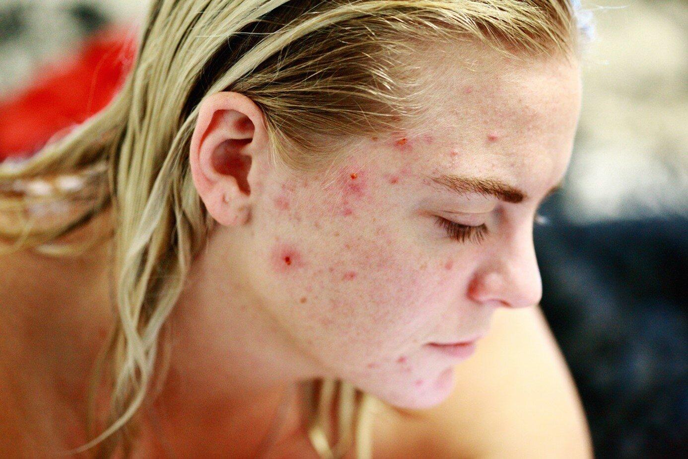Frau mit Hautirritationen im Gesicht